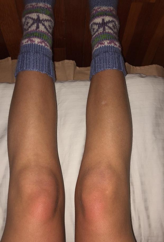 Frusna ben med strumpor